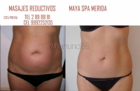 20%-REDUCTIVOS REAFIRMANTES,MAYA SPA MERIDA