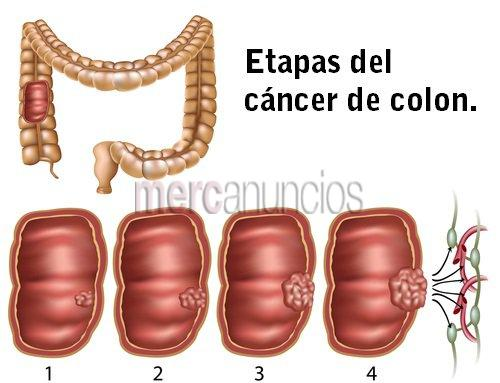 como curar el cancer de colon de forma natural